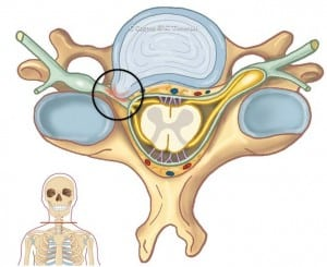 nakkeprolaps illustrasjon
