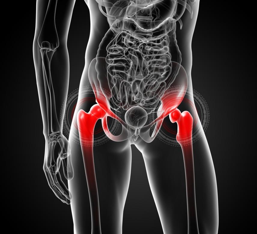 Hofteartrose og kneartrose kan lindres av trening!